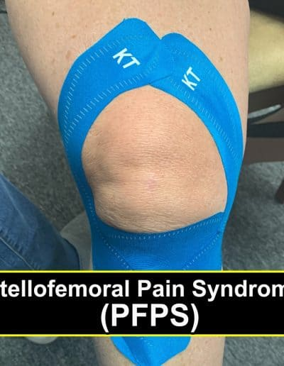 Patellofemoral Pain Syndrome PFPS- Buffalo Occupational Therapy Alternative Pain Managment