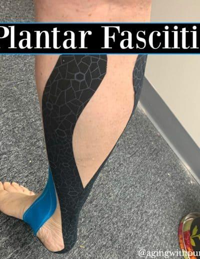 Plantar Fascitis-Buffalo Occupational Therapy Alternative Pain Managment