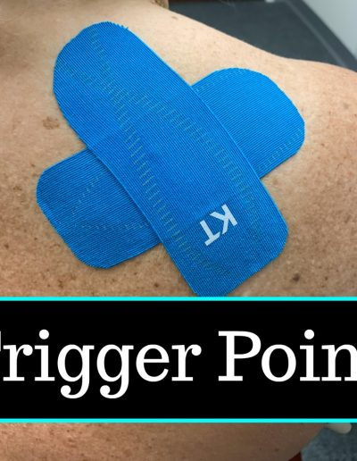 trigger point-Buffalo Occupational Therapy Alternative Pain Managment