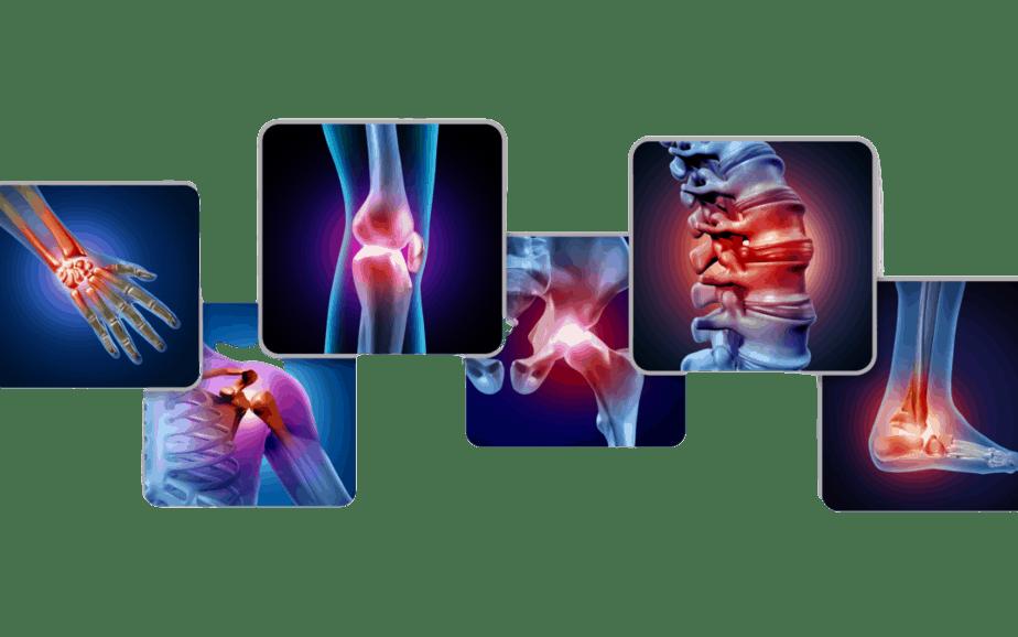Arthritis Pain and Rehabilitation
