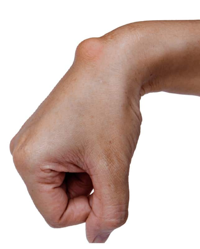 Ganglion Cyst Treated by Occupational Therapy (1)