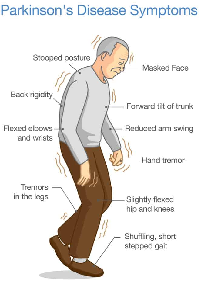 Parkinson's Disease Symptoms - Buffalo Occupational Therapy